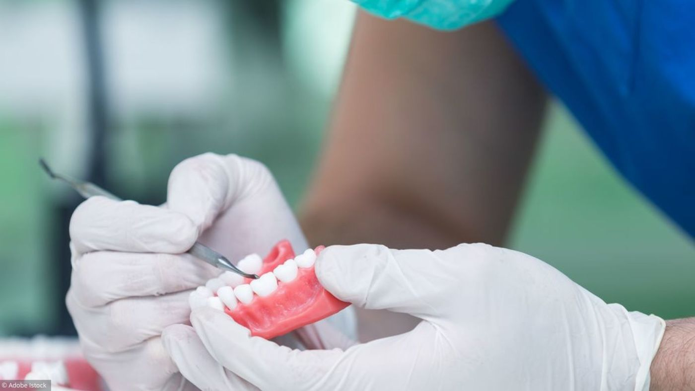 Implant dentaire : Est-ce une dent utile ?